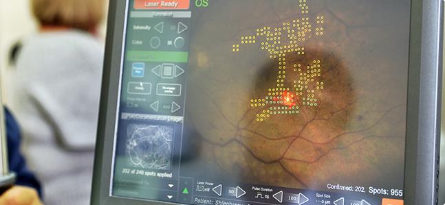 Сахарный диабет глаза лазером